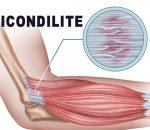 Epicondilite na rosca direta – como prevenir? 5 Dicas!