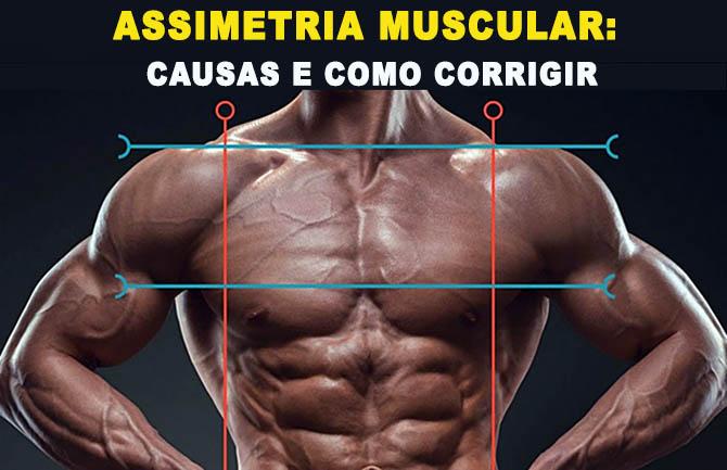 assimetria muscular o que causas tratamento
