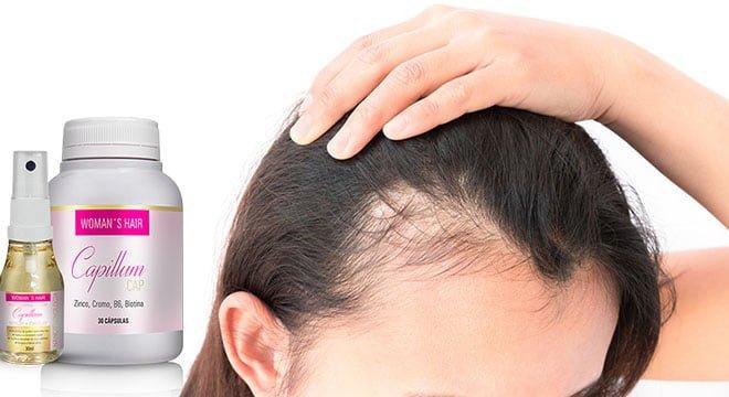 queda e calvície em mulheres Womans Hair Capillum