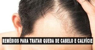 remédios para tratamento queda de cabelo e calvície