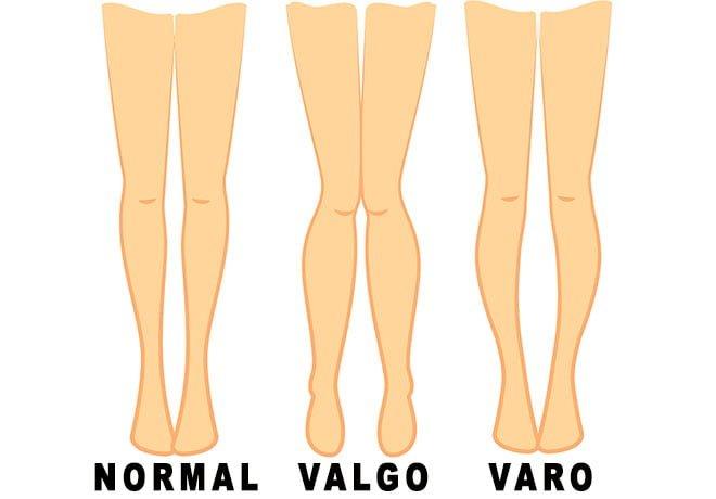 joelho varo tratamento valgismo