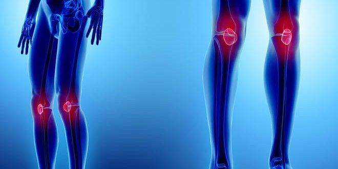 Compressão patelar exercícios musculação evitar