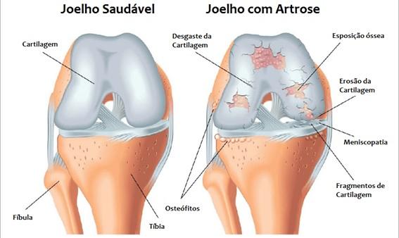 Exercícios para pessoas com artrose
